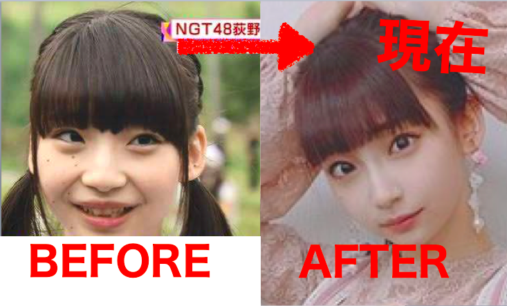 荻野由佳の現在が整形&加工で顔変わった?トカゲは過去と話題に