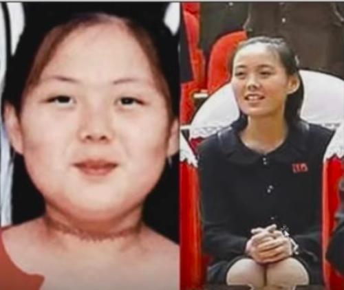 金与正(キムヨジョン)の若い頃・昔が太ってデブだったスイス留学時代(現在と変わった比較画像)